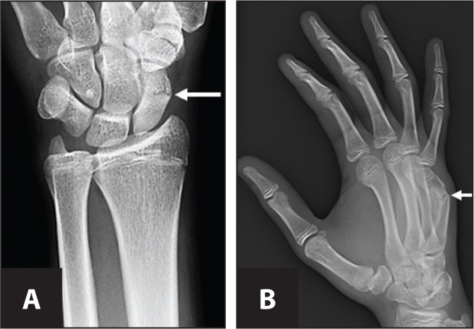 "(A) Fracture through waist of the scaphoid bone. (B) Fracture through shaft of the 5th metacarpal (""boxer's fracture"")."
