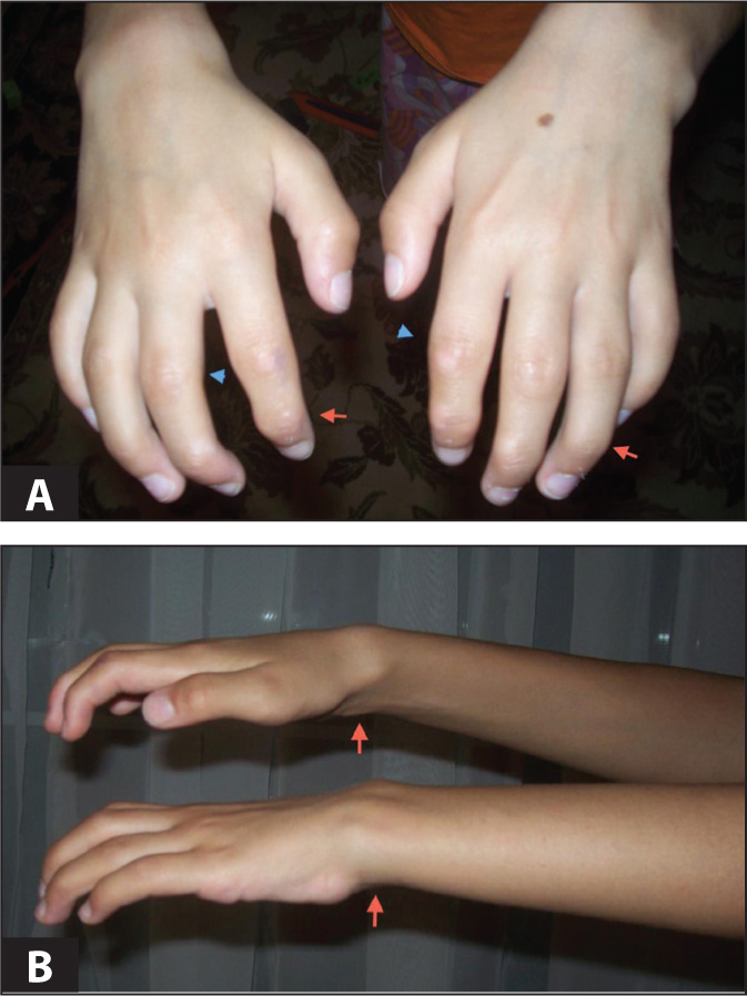 (A) Flexion contractures in distal (red arrow) and proximal (blue arrowhead) interphalangeal joints. (B) Flexion contractures in wrists (red arrows).Images courtesy of Julian Raiman, MBBS, MSc, MRCP.
