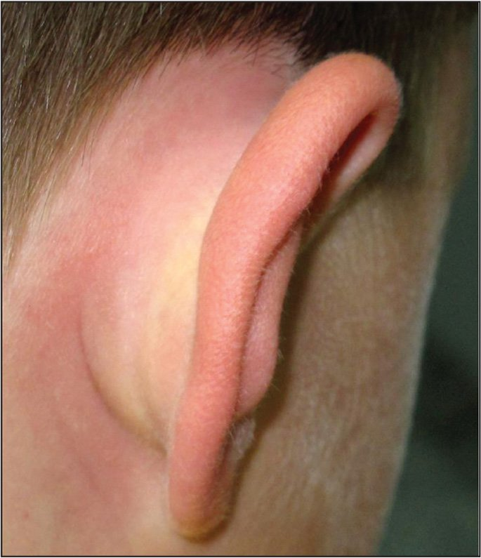 A previously healthy, afebrile 7-year-old male who has just returned from his spring break in Florida presents with this swollen red area behind his right ear. His tympanic membranes are normal, but the moderately painful swollen ear canal has some whitish debris. After his visit to the emergency department 2 days ago, he was prescribed high-dose amoxicillin and topical antibiotics for his earache. His mother cannot remember the name of the drops. Why has his condition worsened in the past 24 hours?