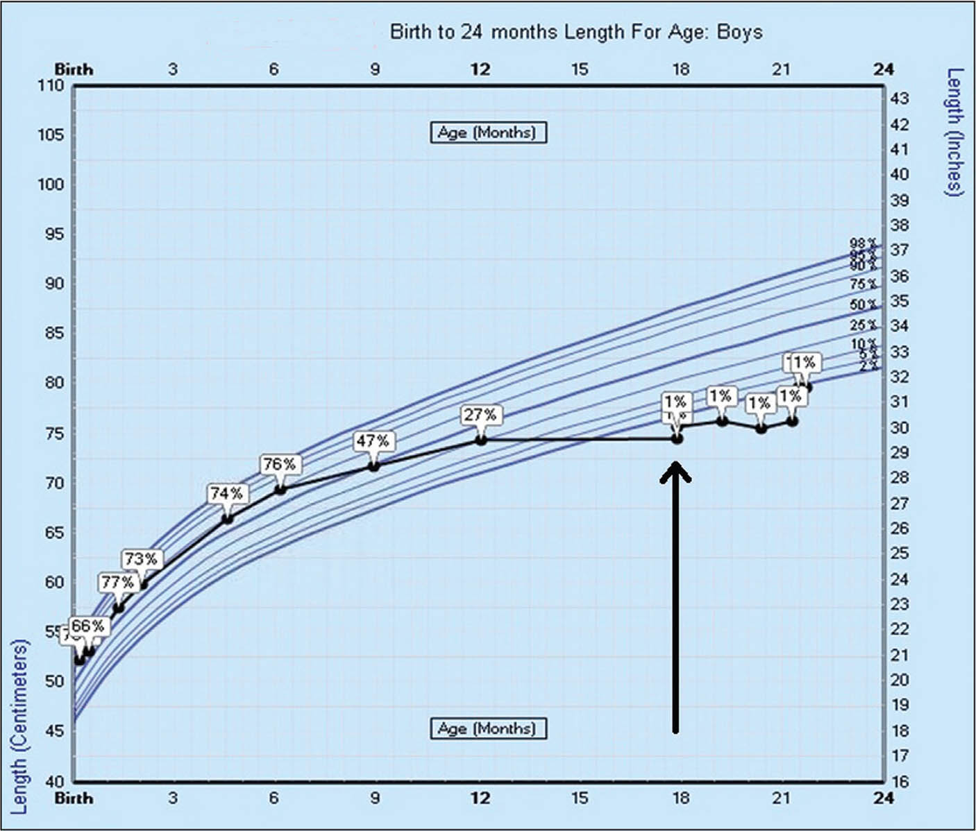 Decline in linear growth velocity starting after age 6 months, from the 76th percentile to <1st percentile.