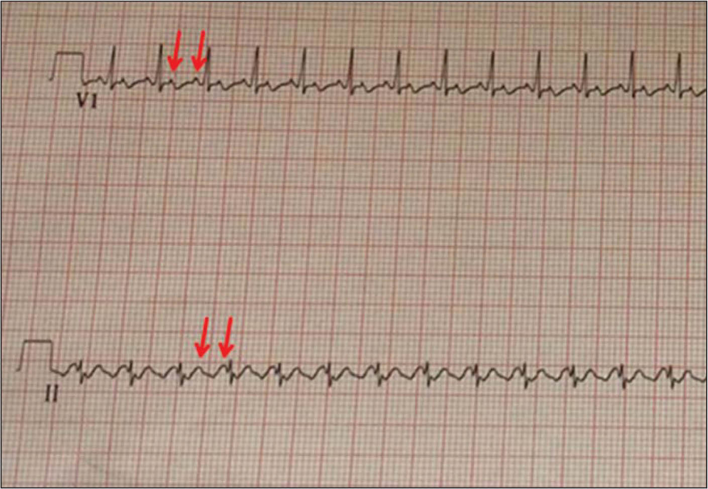 """An electrocardiogram showing atrial flutter with 2:1 atrioventricular conduction. The red arrows point to """"saw tooth"""" flutter waves. Ventricular rate is approximately 185 beats per minute."""