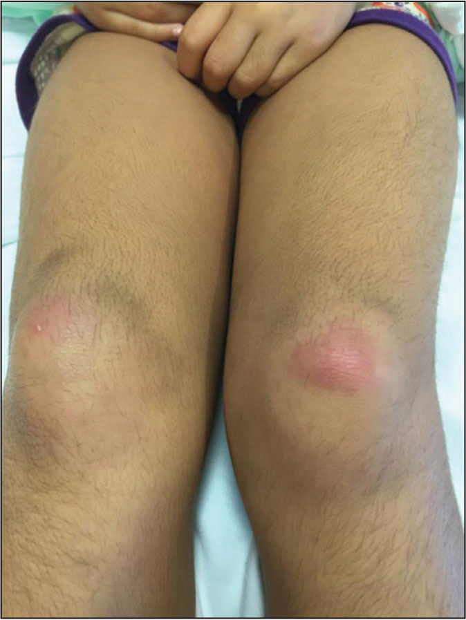 Bilateral erythematous patches on the knees.