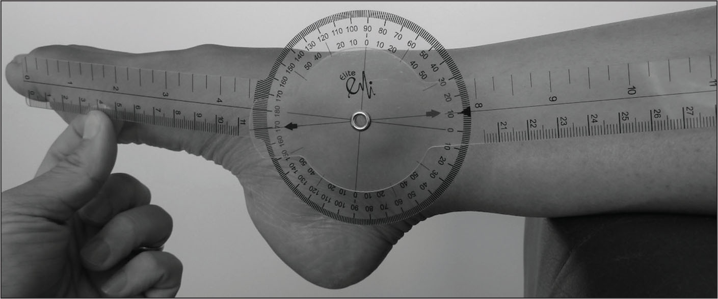 Measurement of ankle plantarflexion using a goniometer. Courtesy of Jeffrey C. Lai.