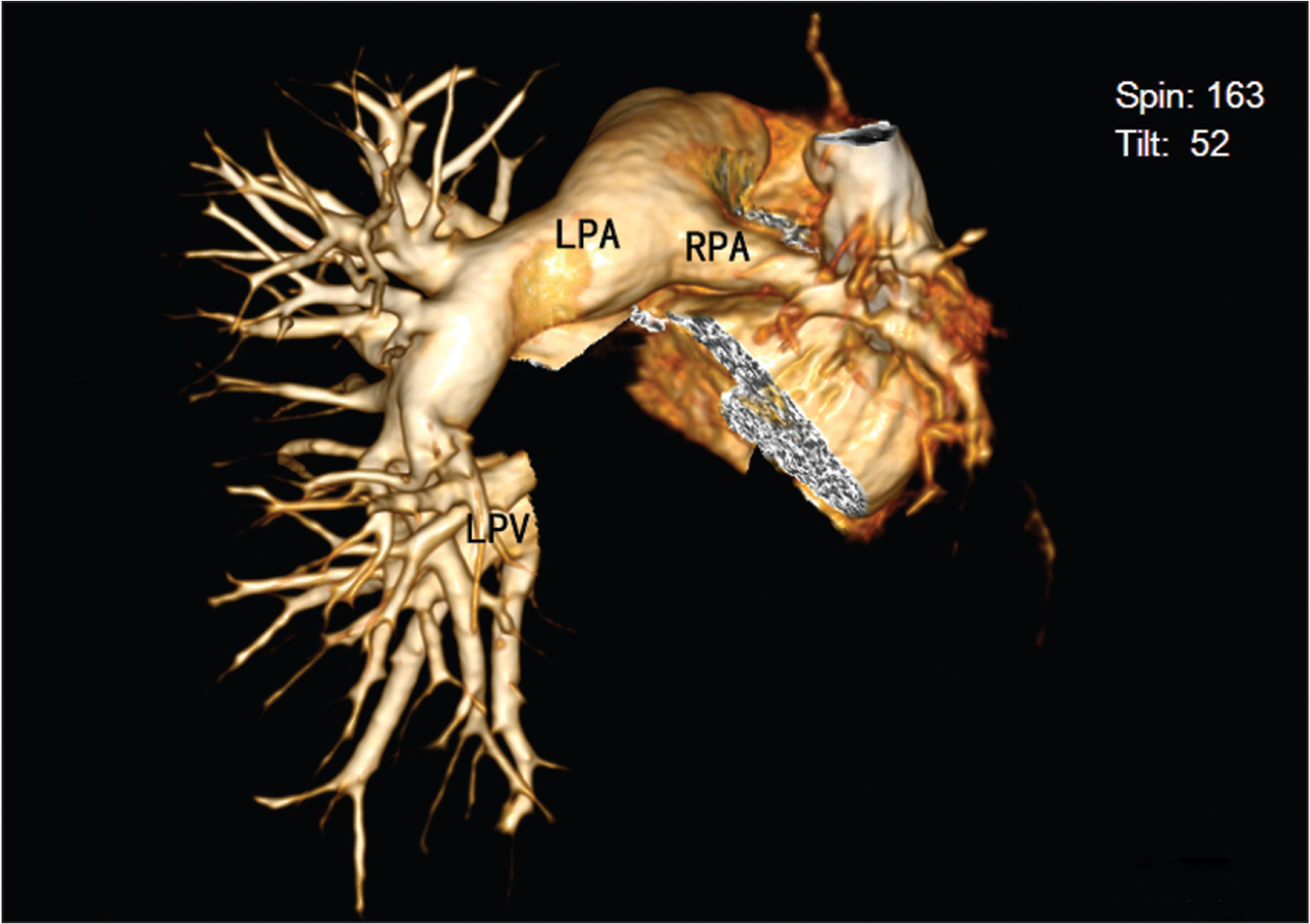 Three-dimensional reconstruction image shows thin right pulmonary artery with fewer branches. LPA, left pulmonary artery; LPV, left pulmonary vein; RPA, right pulmonary artery.
