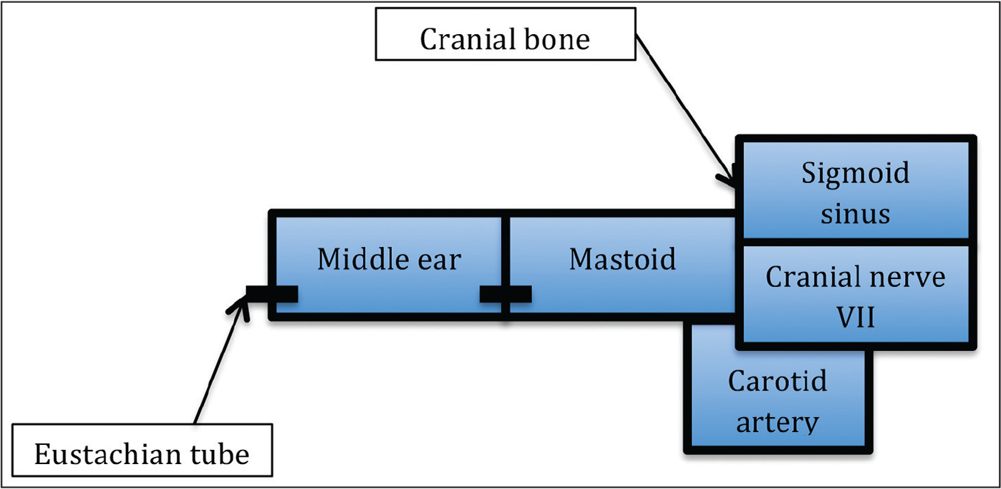 Anatomy of the mastoid. The mastoid sits between the middle ear and multiple important structures, including the carotid artery, the seventh cranial nerve, and the sigmoid sinus. The eustachian tube drains the middle ear, and a small connection called the aditus ad antrum unites the middle ear and mastoid.