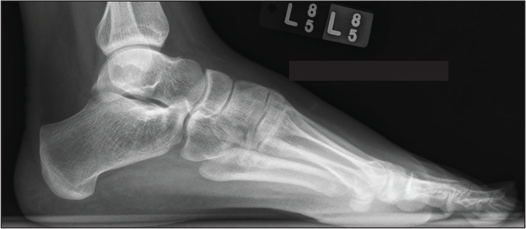 Lateral weight-bearing radiograph showing cavus foot alignment.
