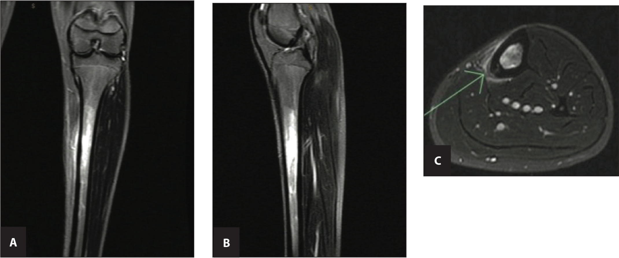 Tibia stress fracture. (A) Coronal view, (B) sagittal view, and (C) axial view. Magnetic resonance imaging reveals significant soft tissue and bone marrow edema surrounding the stress fracture identified in the axial image (arrow). Reprinted with permission of SLACK Inc.24
