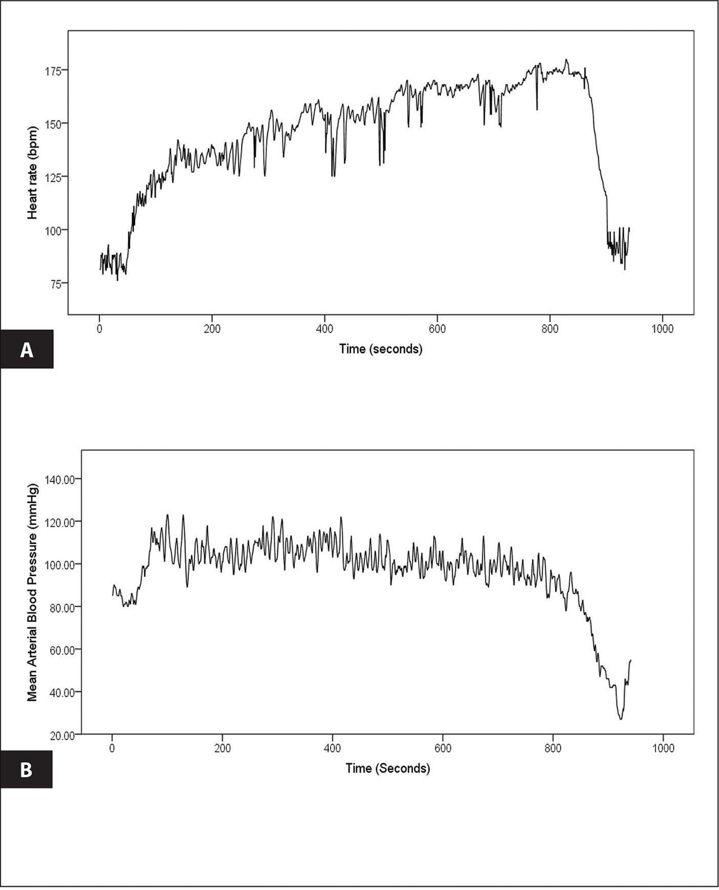 The figure demonstrates (A) a sustained elevation in heart rate without (B) hypotension for the first 10 minutes (600 seconds) of upright tilt. The blood pressure began to drop at about 800 seconds until neurally mediated (cardioinhibitory) syncope at about 900 seconds. The patient reported several orthostatic symptoms that progressed through the study.