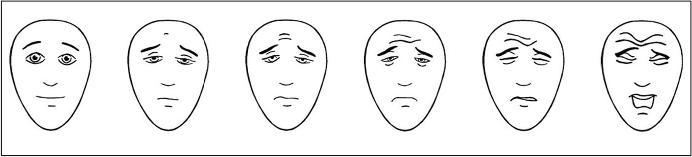 Faces Pain Scale-Revised. Reprinted with permission of the International Association for the Study of Pain.9