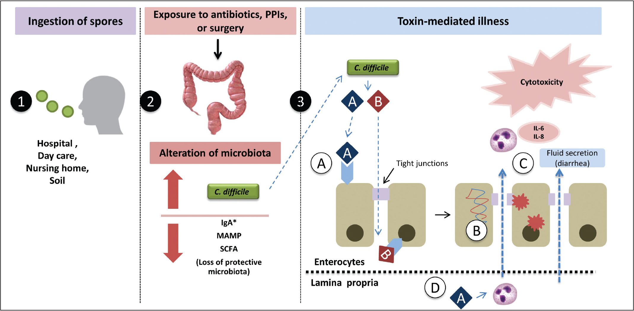 Events in the pathogenesis of Clostridium difficile infection. C. difficile infection begins with dysbiosis created by antibiotics, proton-pump inhibitors, or surgery, allowing colonization of toxigenic strains of C. difficile. Disease is caused by toxin A and B production. (A) These toxins bind to receptors on the enterocytes. (B) This causes disorganization of actin microfilaments resulting in (C) opening of tight junctions and destruction of enterocytes. (D) Toxin A diffuses through the open junction and induces activation of neutrophils. The consequence is increased permeability and damage of enterocytes from local inflammation, resulting in the clinical symptoms of C. difficile infection. IgA, immunoglobulin A; MAMP, microbial-associated molecular patterns; PPI, proton-pump inhibitor; SCFA, short-chain fatty acid.
