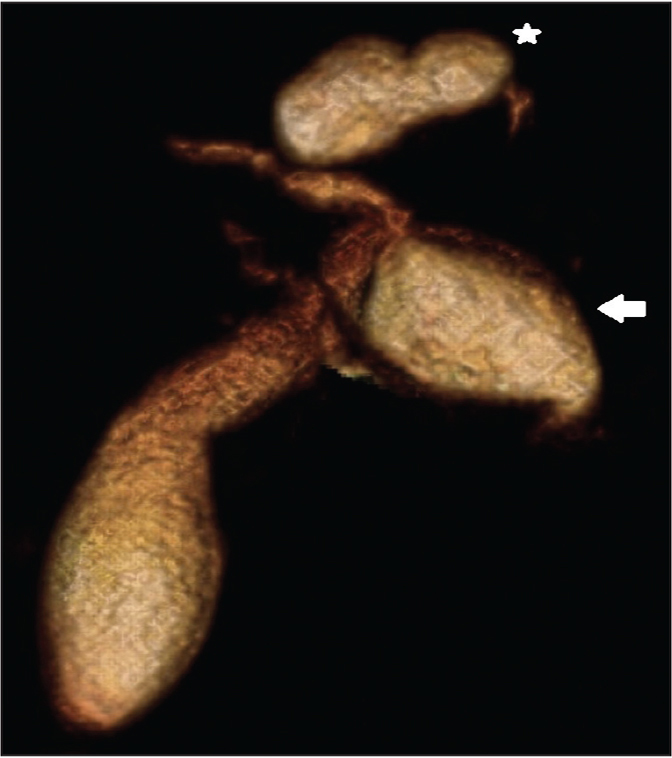 Post-processed three-dimensional volume rendered magnetic resonance cholangiopancreatography images showing type IVA choledochal cyst. Note fusiform common bile duct dilatation (arrow) and cystic left intrahepatic dilatation (star).