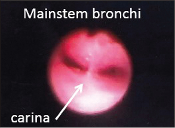 Bronchomalacia. Direct visualization of the carina with bronchoscopy demonstrates anterior-posterior narrowing of both mainstem bronchi leading to altered morphology (slit-like appearance rather than the normal circular appearance).