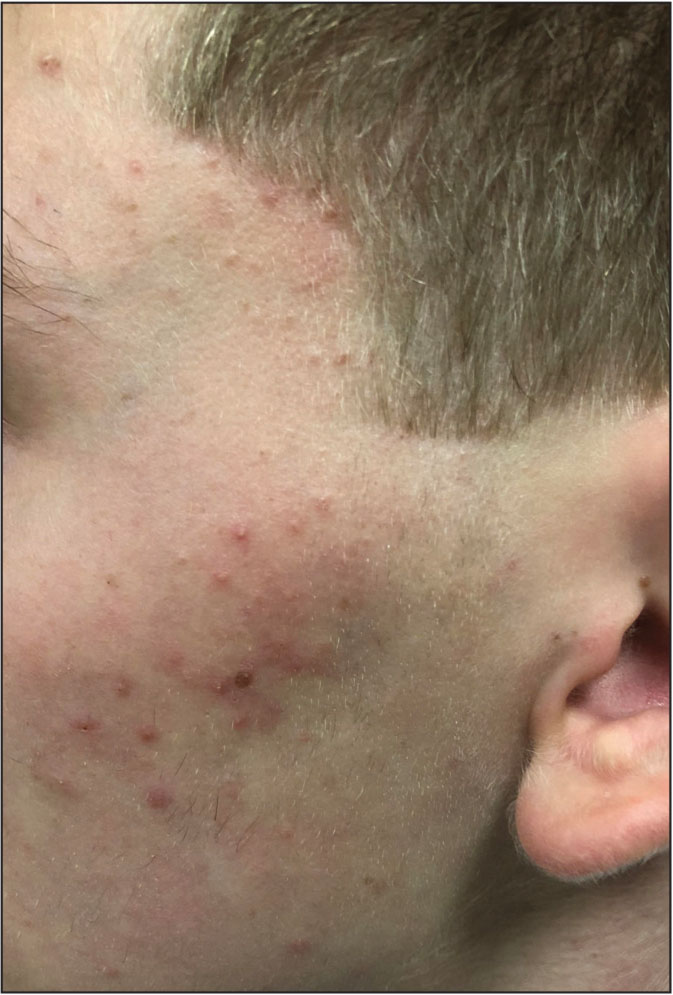Mild acne. Few papules and pustules, no nodules, and limited comedones.