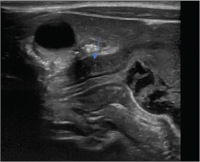 Pyloric stenosis (see arrow pointing at thickened pylorus). Used with permission from Dr. Shamim Ejaz (Department of Radiology, University of Illinois at Chicago).