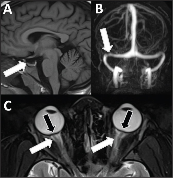 "Magnetic resonance imaging (MRI) findings of idiopathic intracranial hypertension (IIH) in a 16-year-old girl with headaches and papilledema. The noncontrast MRI sagittal T1 images showed fluid causing expansion of the sella and (A) mass effect on the pituitary gland (arrow), sometimes making the pituitary gland almost imperceptible (""empty"" sella). (B) A noncontrast magnetic resonance venogram showed right-sided stenosis of the transverse venous sinus (arrow). (C) Axial T2-weighted image shows flattening of the posterior globe as a sign of papilledema (black arrows) and peri-optic edema (white arrows)."
