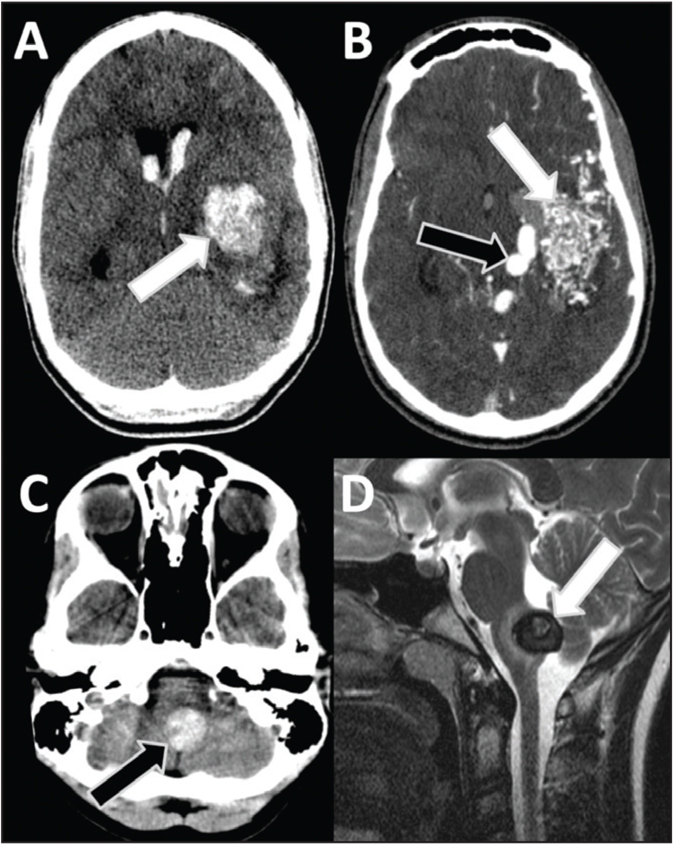 Imaging appearance of vascular malformations in a 12-year-old boy with sudden onset headaches and arteriovenous malformation (AVM). (A) Intraparenchymal bleed on axial noncontrast head computed tomography (CT) images (arrow) raised concern for an AVM. (B) Postcontrast CT arterial-phase images show a tangle of vessels (white arrow) and a large draining vein (black arrow), which are typical features of AVM. (C, D) A 17-year-old girl with worsening headaches and cavernous malformation. (C) Hyperdense lesion in the brainstem on axial noncontrast head CT images (arrow) raised concern for a bleed. (D) Subsequent magnetic resonance imaging sagittal T2 image shows imaging signs of a cavernous malformation with recent hemorrhage (arrow).