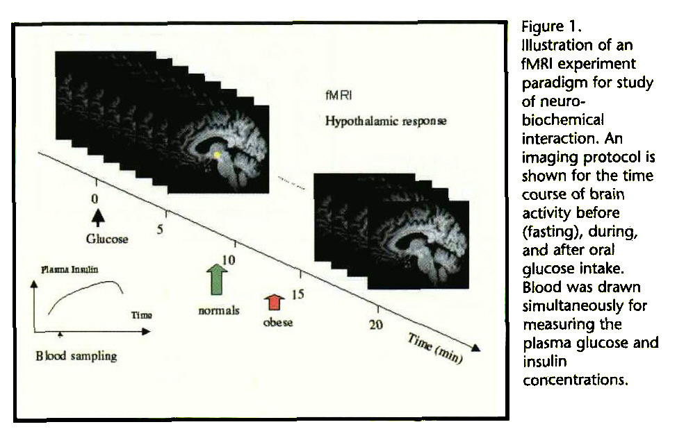Figure 1. Illustration of an fMRI experiment paradigm for study of neurobiocbemical interaction. An imaging protocol is shown for the time course of brain activity before (fasting), during, and after oral glucose intake. Blood was drawn simultaneously for measuring the plasma glucose and insulin concentrations.
