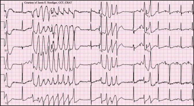 Electrocardiogram readout showing Torsades de pointes.Image courtesy of Jason E. Roediger, CCT, CRAT. Reprinted with permission.