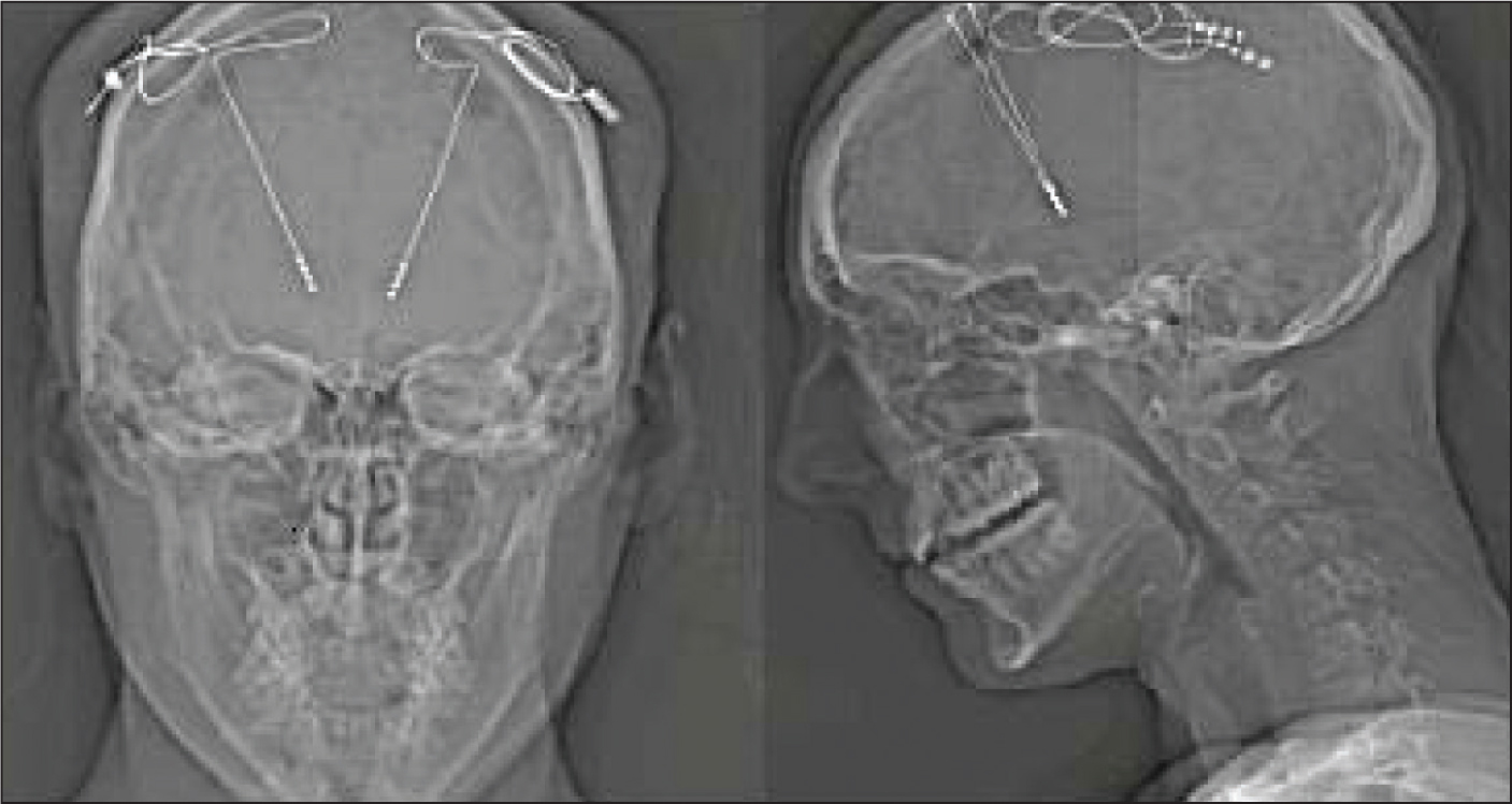 Coronal view (left panel) and sagittal view (right panel) from a computed tomography scan in a patient immediately after implant surgery (ie, lead placement in the ventral capsule/ventral striatum). The extension wires and neurostimulators have not yet been implanted.Image courtesy of Cristina Cusin, MD.