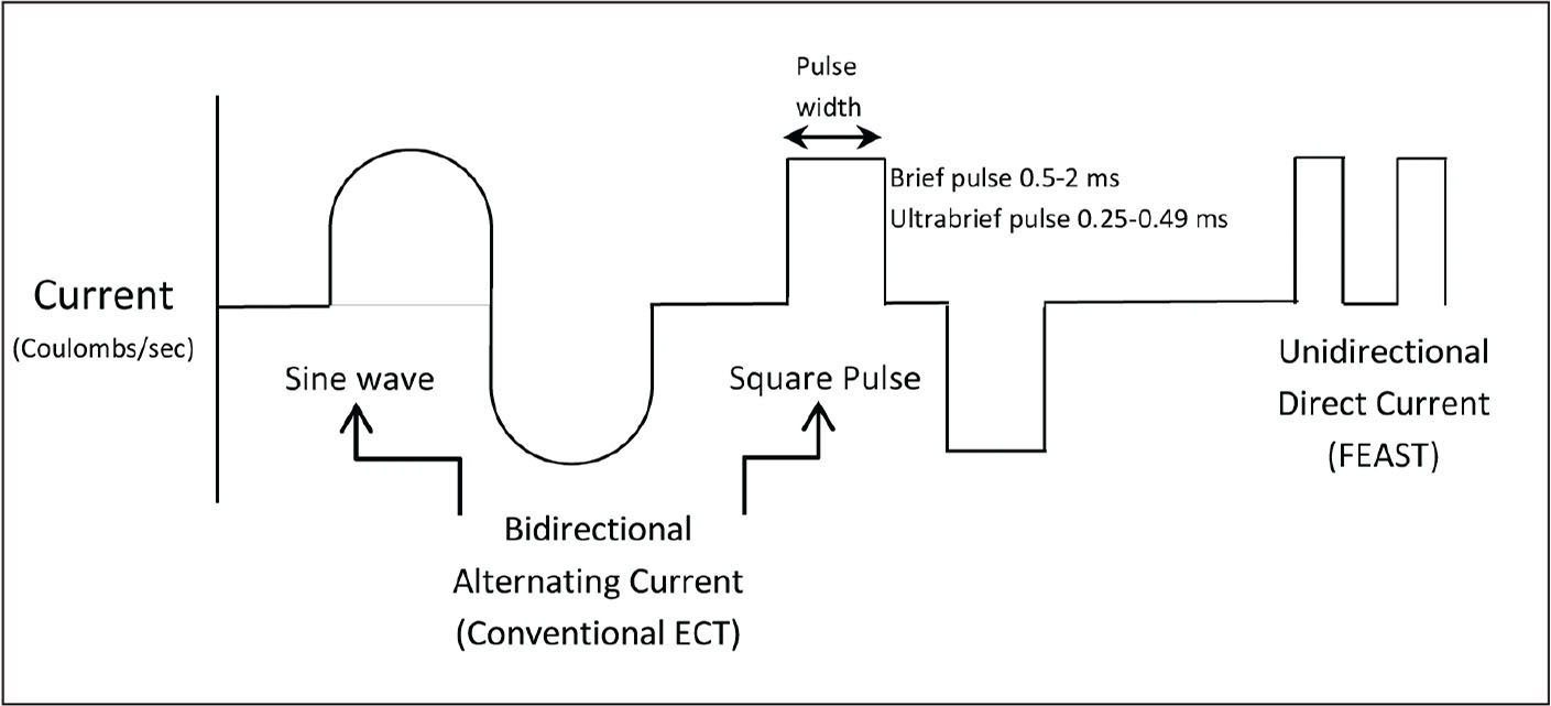 Electroconvulsive therapy waveforms. ECT, electroconvulsive therapy; FEAST, focal electrically administered seizure therapy.