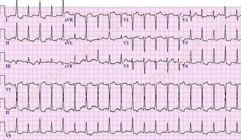 WPW-Alternans-ECG