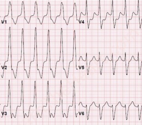 Right Bundle Branch Block (RBBB) ECG Review - Criteria and ...