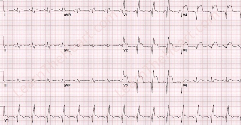 answers lab06 ecg