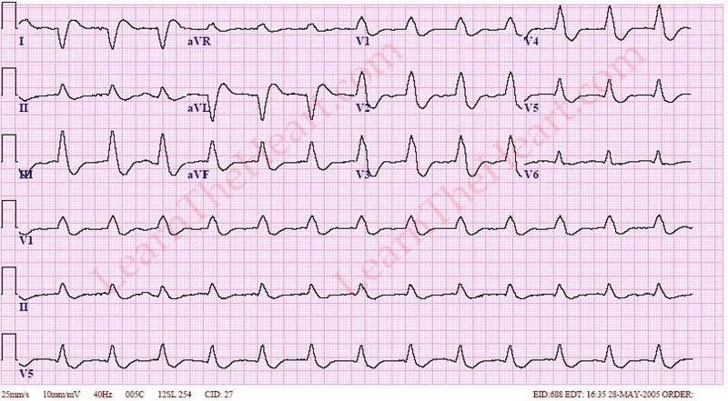 AcceleratedIdioventricular1