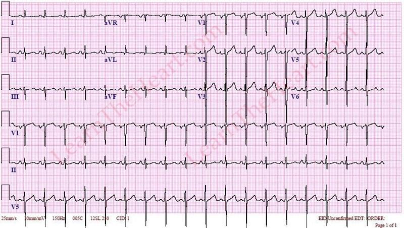 SinusTachycardiaECG3