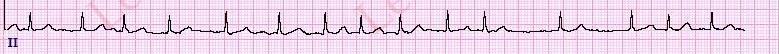 AtrialFibrillationHRFullStrip