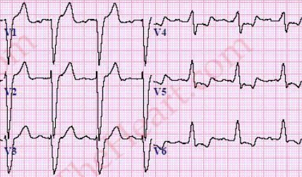 Left Bundle Branch Block (LBBB) ECG Review - Criteria and Examples ...
