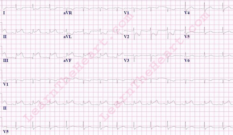Inferior-STEMI-5