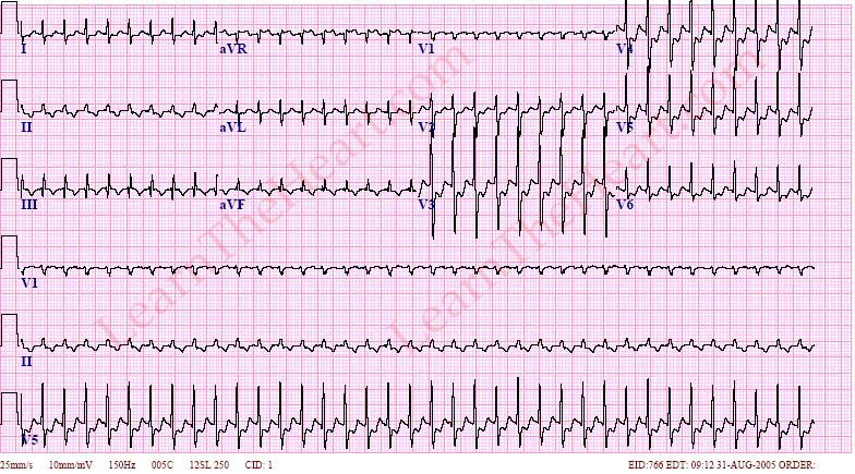 Av Nodal Reentrant Tachycardia Example Learntheheart Com