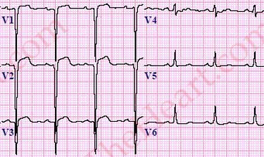 LeftVentricularLVAneurysmECG