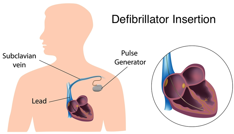 Defibrillator_Insertion
