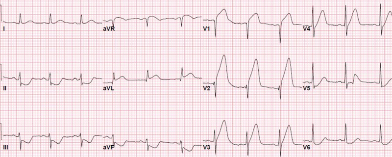 Top 60 MI ECG Patterns You Must Know LearntheHeart Magnificent Ecg Pattern