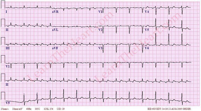 AtrialTachycardia2to1