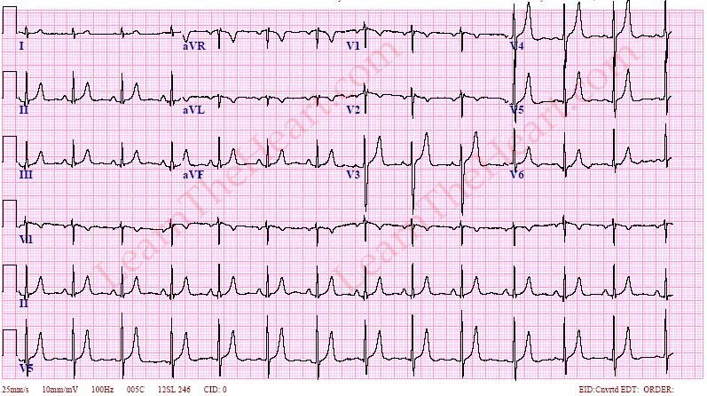 Hyperkelemia-ECG-3
