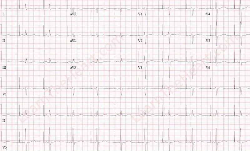 AAI Pacemaker ECG