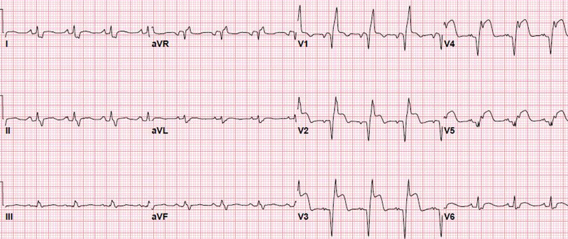 Top 60 MI ECG Patterns You Must Know LearntheHeart Inspiration Ecg Pattern