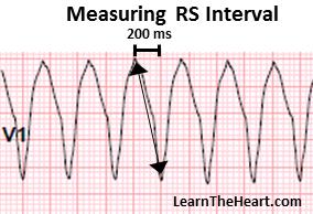 Ventricular Tachycardia (VT) ECG Review - Criteria and Examples |  LearntheHeart.com