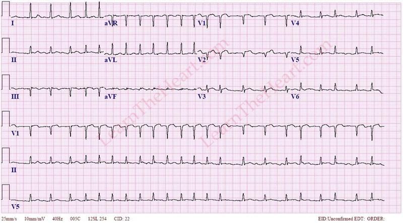 AtrialFibrillation-RVR1