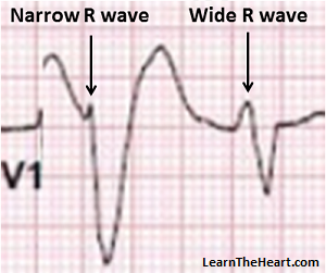 LBBB-VT-Morphology