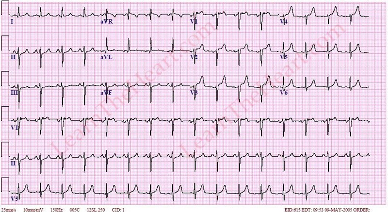 LeftAxisDeviationECG