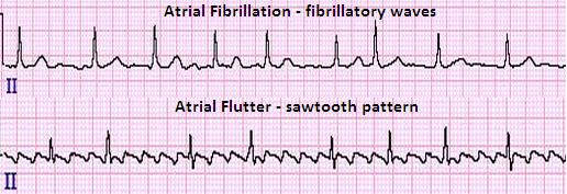 Atrial_fibrillation