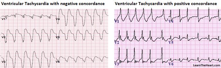 VT-Concordance