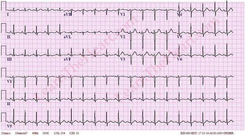 SinusTachycardiaECG2