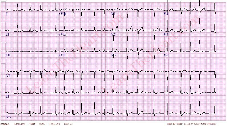 AtrialFibrillation-RVR