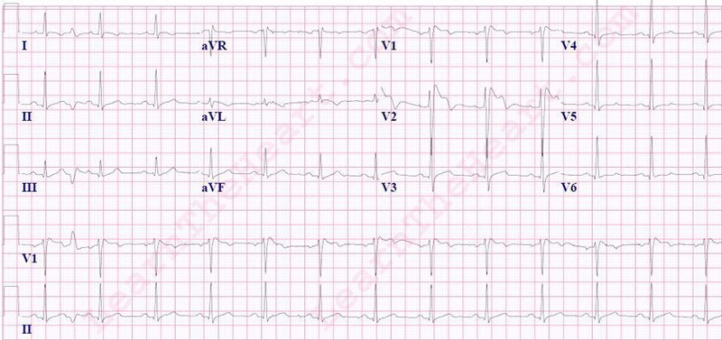 Brugada-Syndrome-ECG