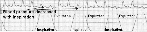 Cardiac_tamponade
